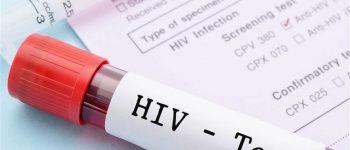 شناسایی تنها ۴۰درصد مبتلایان ، آخرین آمار مبتلا شدن به ایدز در کشور
